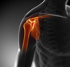 OrthoWashington physicians treat shoulder injuries.